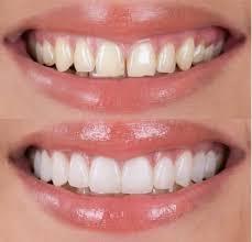 Estetica della bocca